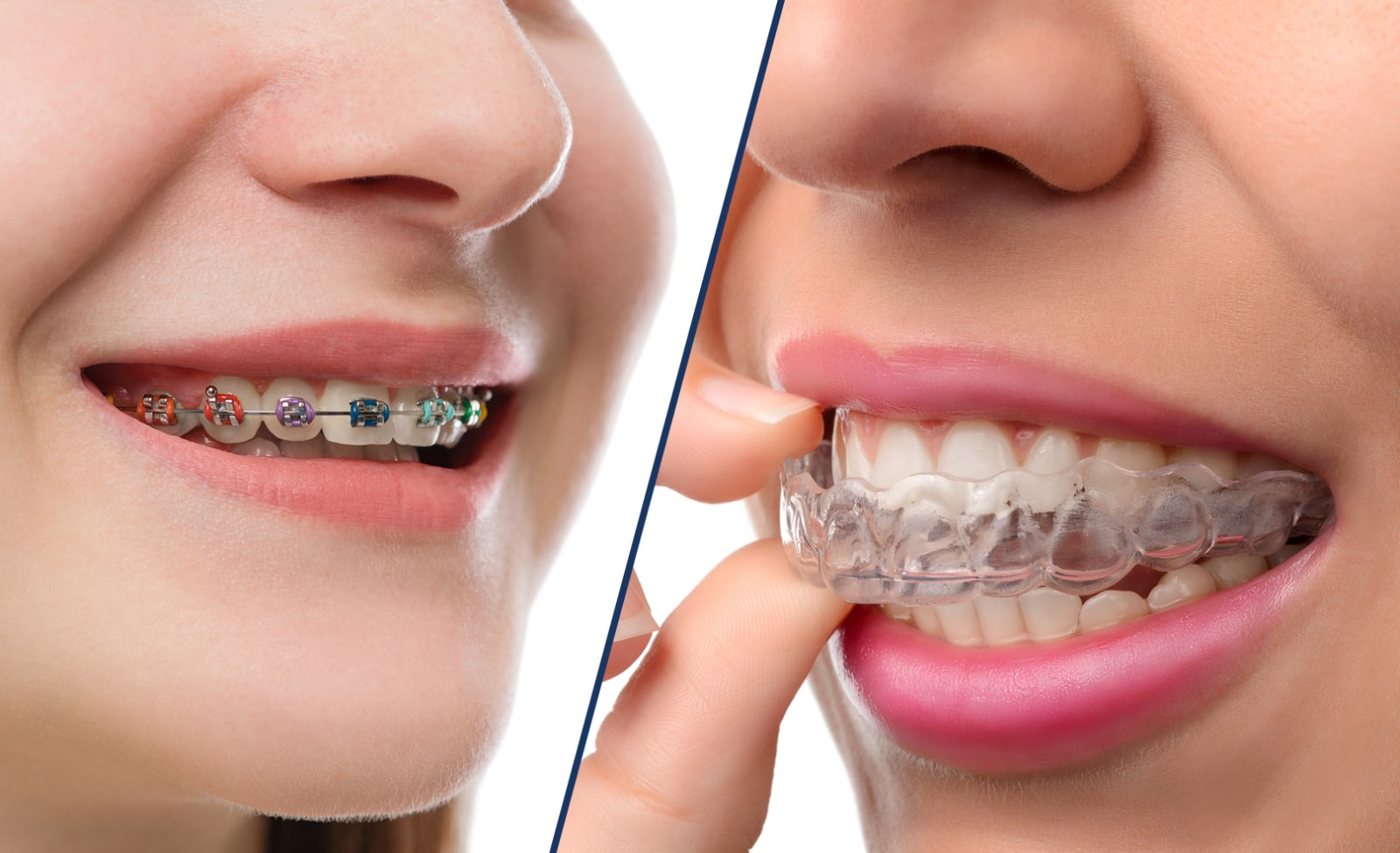 Braces vs Insialign - Leber Orthodontics