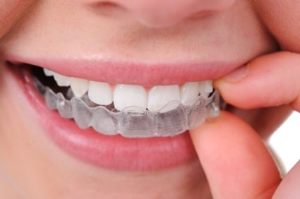 Tucson Invisalign and Clear Braces
